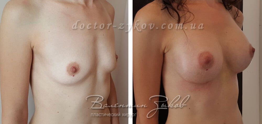 Round, high profile implants Polytech 450 cc, 14 days post-op