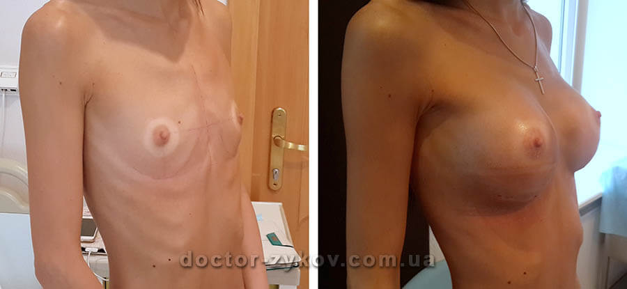 Mammoplasty with anatomical implants under the muscle. Before and after