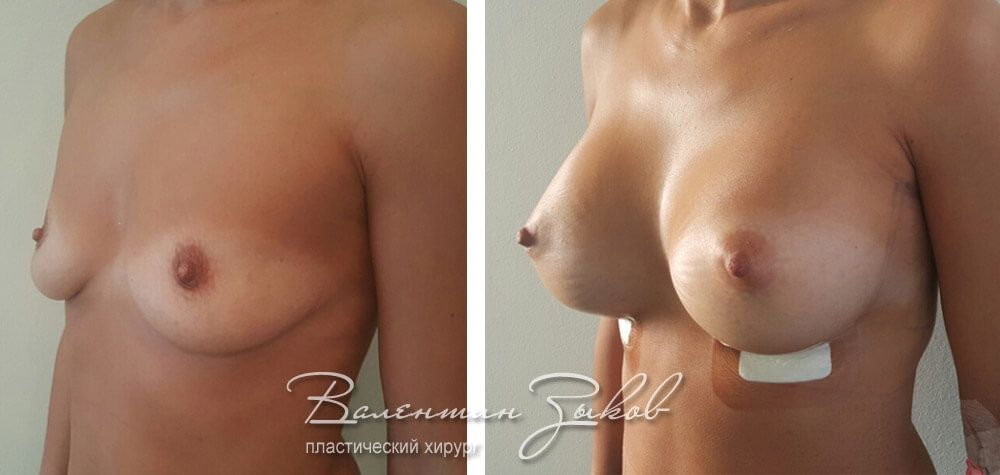 Breast augmentation with round implants Polytech 400 cc under the muscle