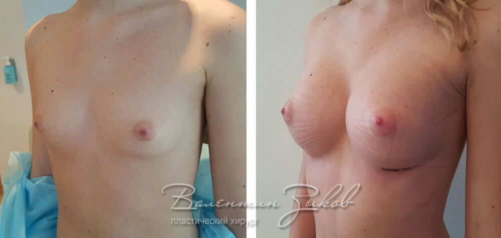 Anatomical implants Allergan 315 cc, 10 days post-op