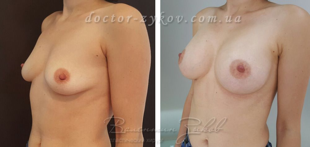 Breast augmentation with Polytech 320 cc anatomical implants