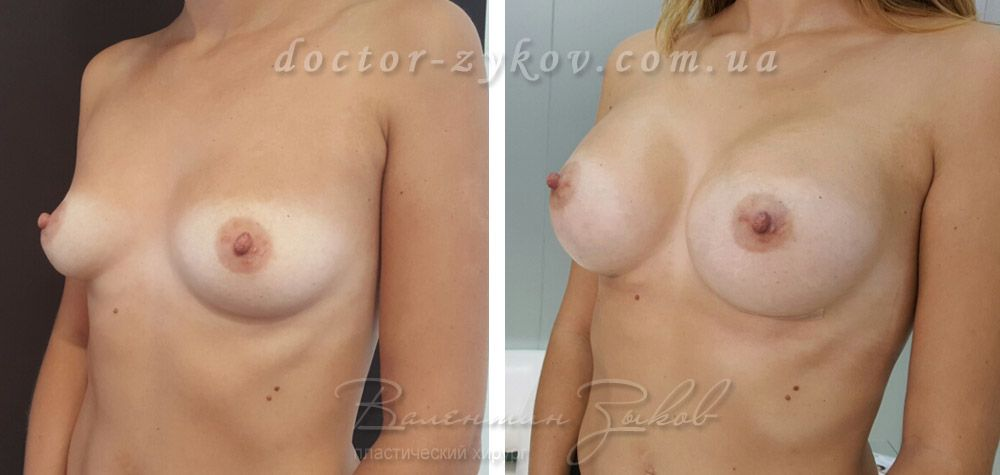 Breast augmentation with round implants Motiva Ergonomix 360 cc before and after