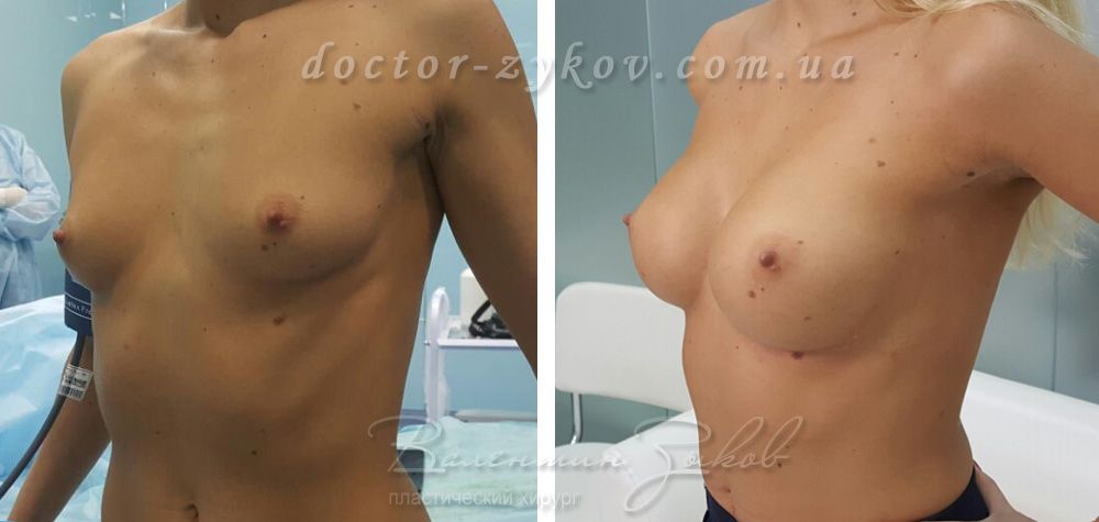 Breast augmentation with anatomical implants Allergan 295 cc