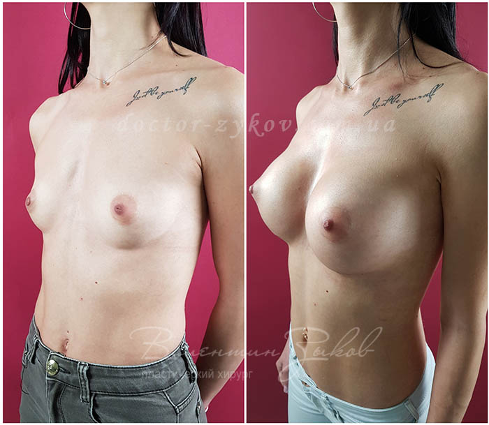 350 cc Polytech polyurethane teardrop-shaped implants under the muscle, 20 days post-op